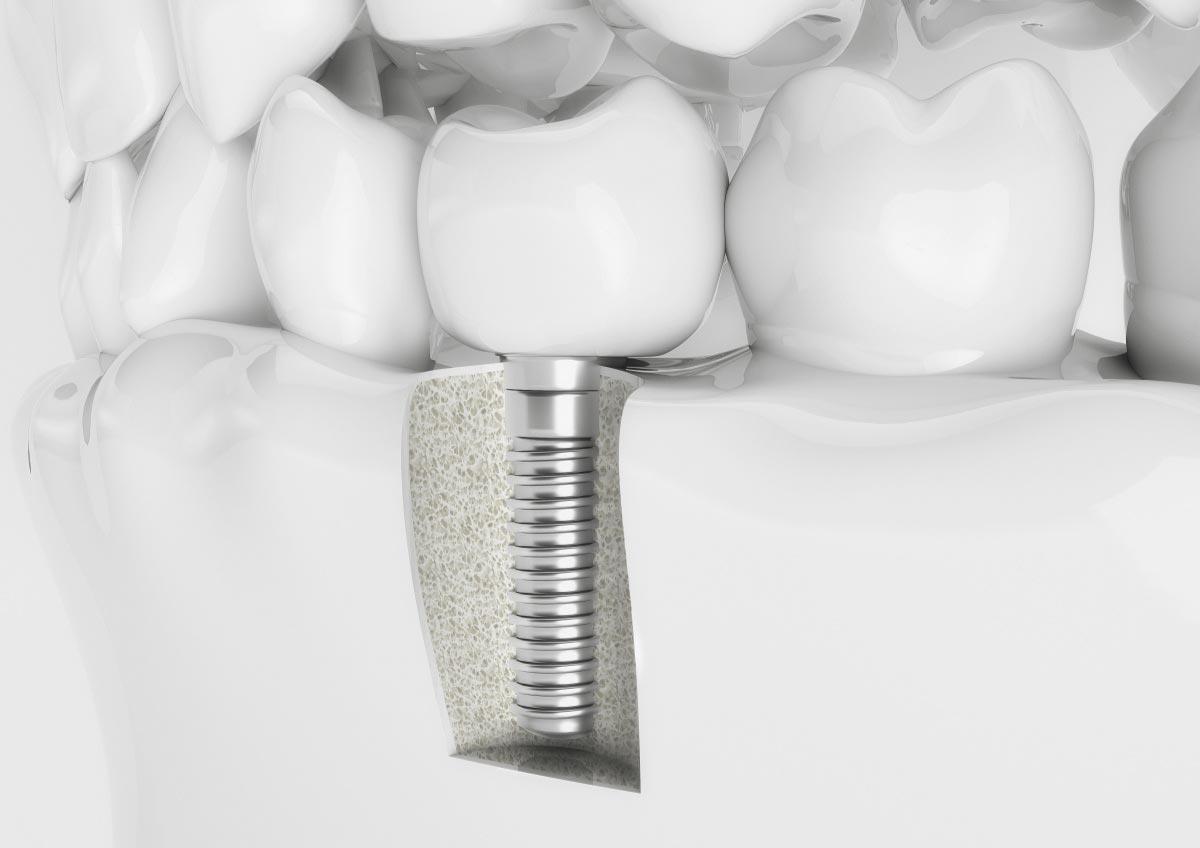 DentalImplant_1200x848